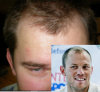 Hairline before.png