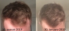 Progression 4 and a half months.png
