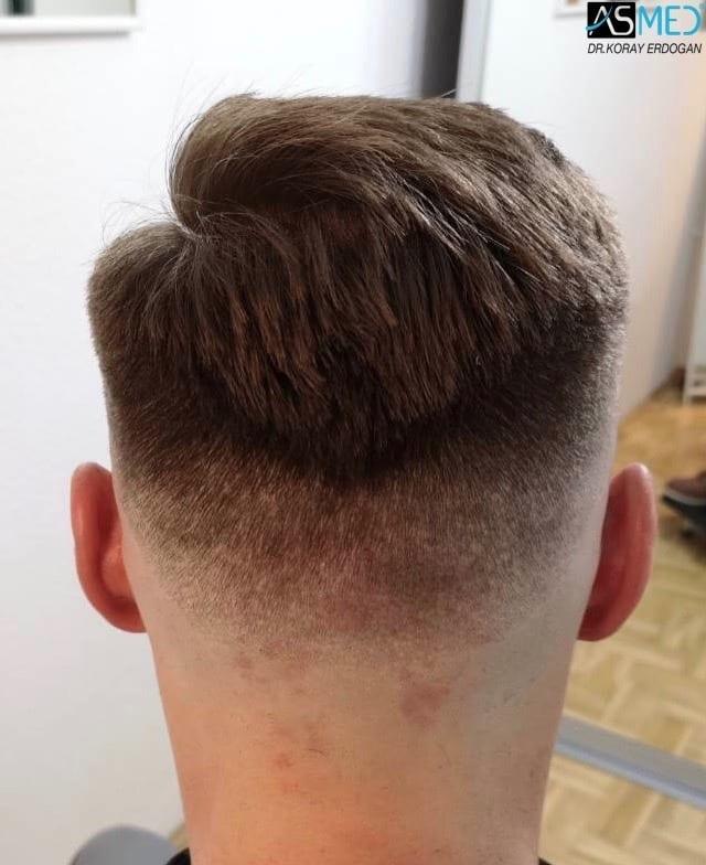 18 mnd etter FUE hårtransplantasjon