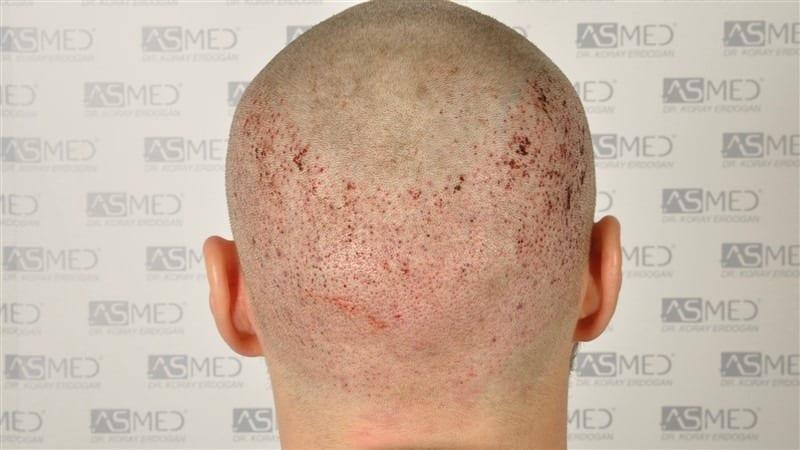 Rett etter FUE hårtransplantasjon