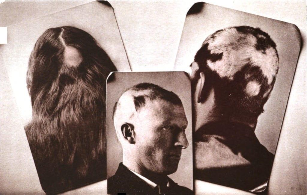 Eksempler på Alopecia areata