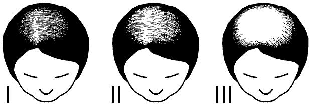 Ludwig-skalaen for kvinnlig hårtap